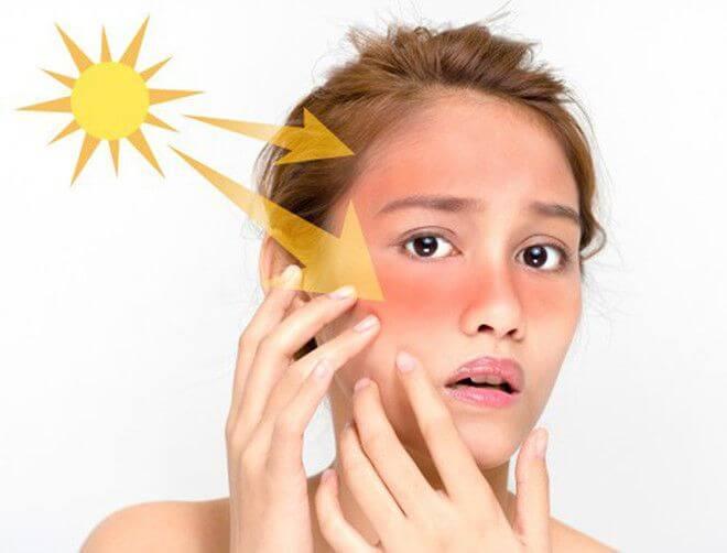 Tia UV - Kẻ thù số một gây nên các tình trạng xấu cho da, nhất là đối với da dầu mụn